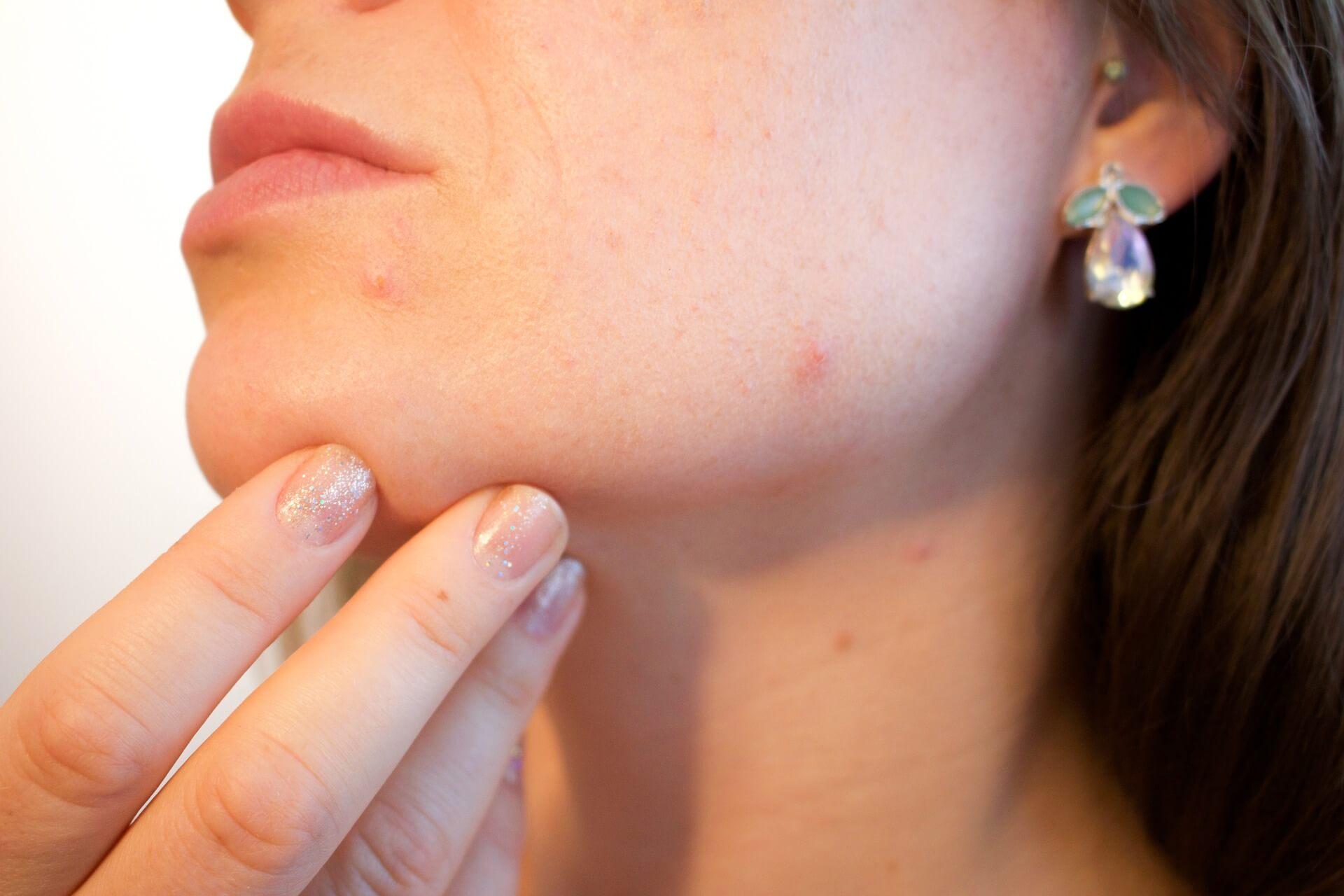 花粉でなぜ肌荒れ?「花粉皮膚炎」の原因や今すぐ実践したいケア方法をご紹介!